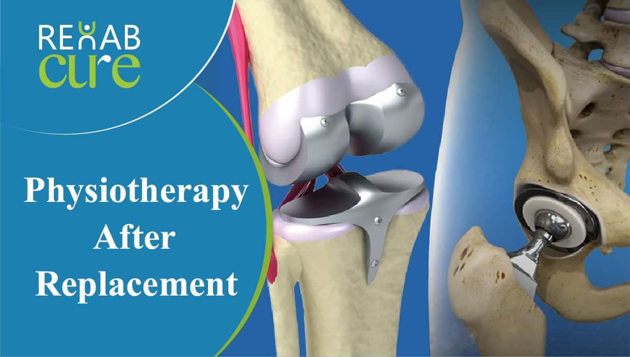 Physiotherapy-After-Replacement