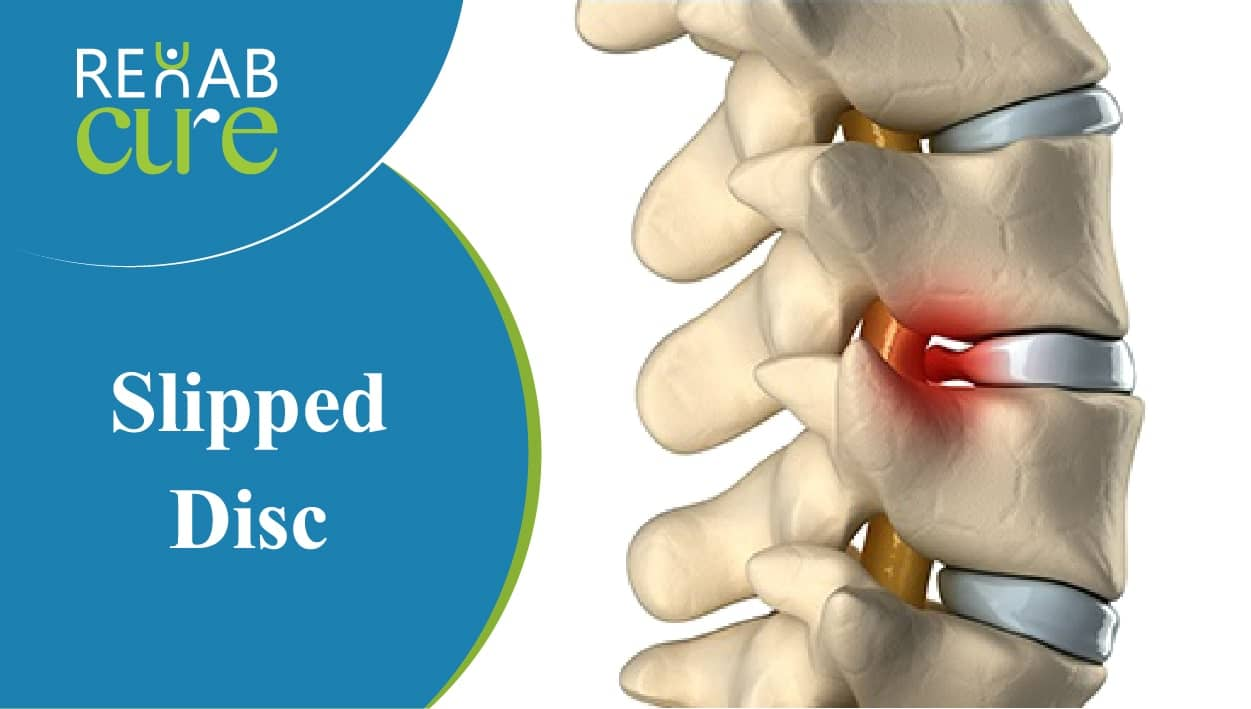 Slipped-Disc-treatment-in-lahore-pakistan