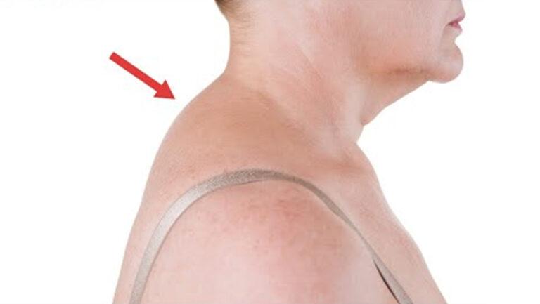 Ways To Improve Your Neck Hump